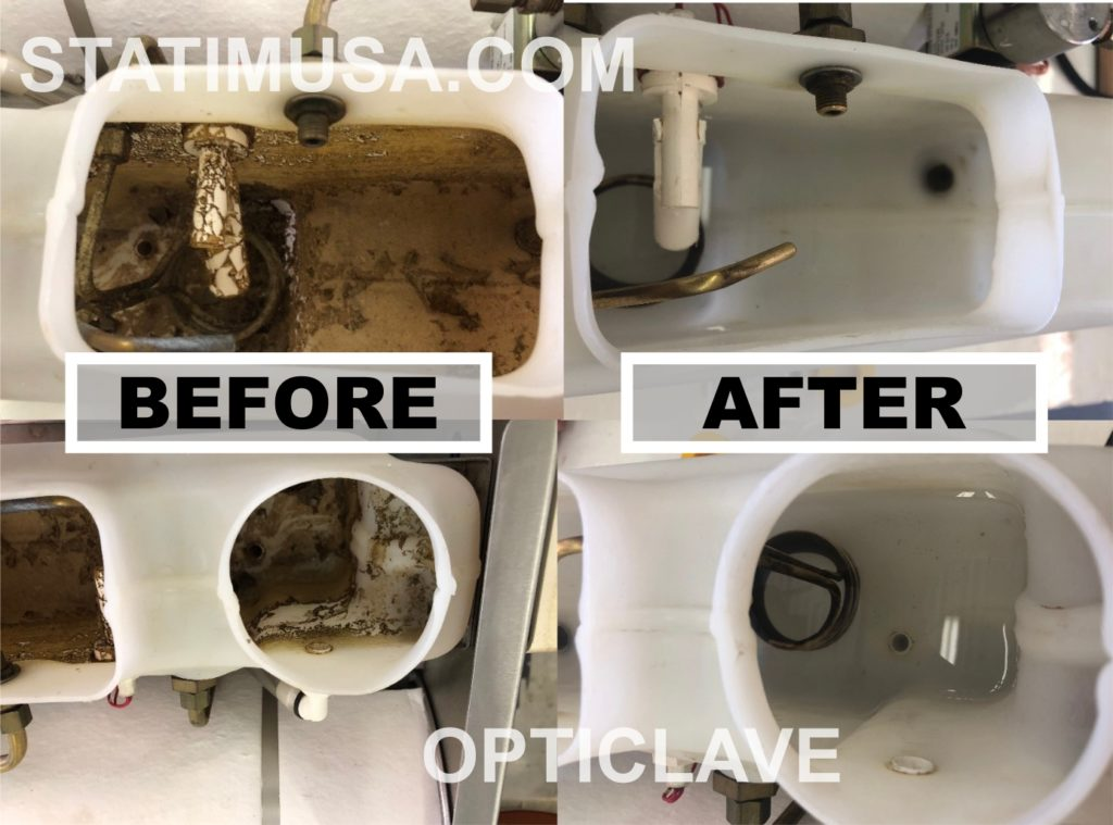 Autoclave Cleaning
